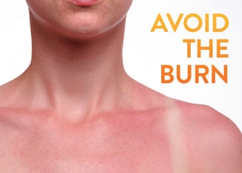 A Dermatologist's Advice on How to Avoid a Sunburn